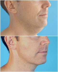 neck lipo men double chin before after photo