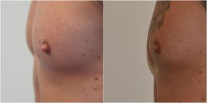 nipple-reduction-mr-adrian-richards-the-private-clinic-web