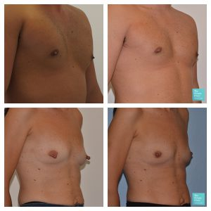 nipple reduction male female before after photos results