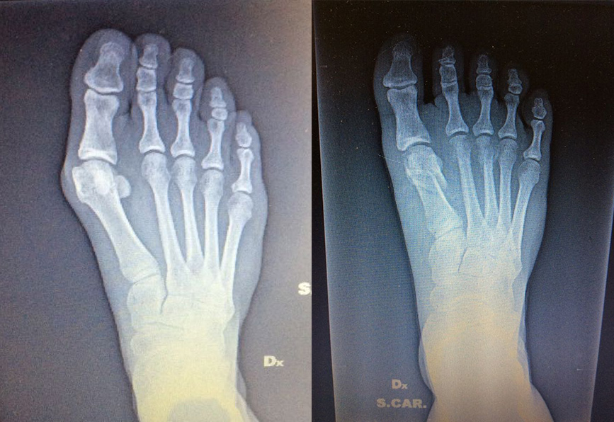 no screw keyhole bunion surgery minimally invasive before after photo xray