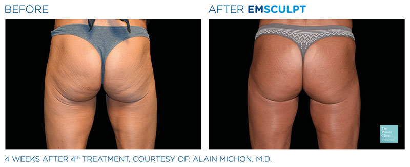 Bum enhancing non surgical procedure before after photo