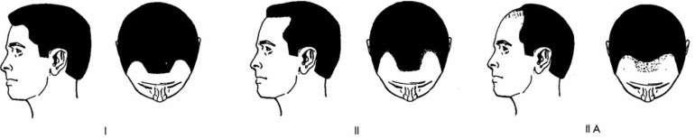 norwood scale receeding hairline fue hair transplant