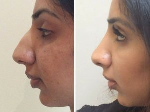 nose job before and after photo