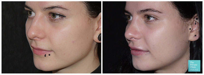 nose job rhinoplasty london harley street before after photo