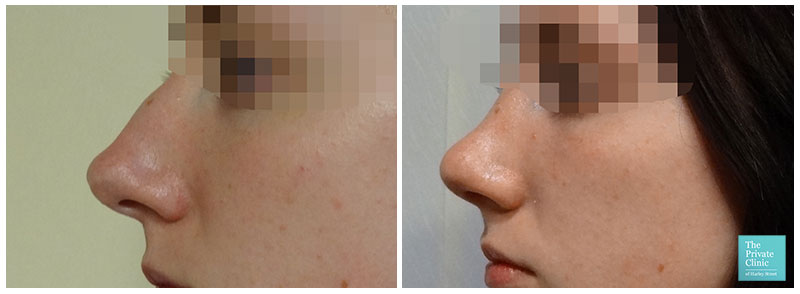 nose enhancement treatment london harley street before after photo