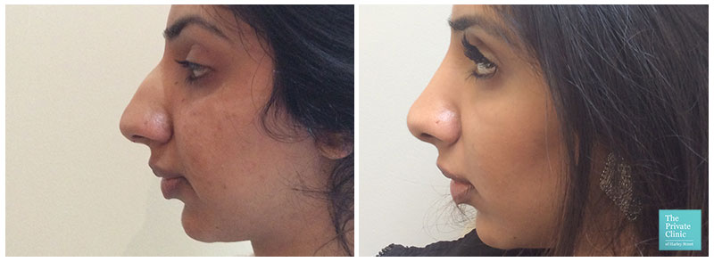 nose reshaping surgery london harley street before after photo