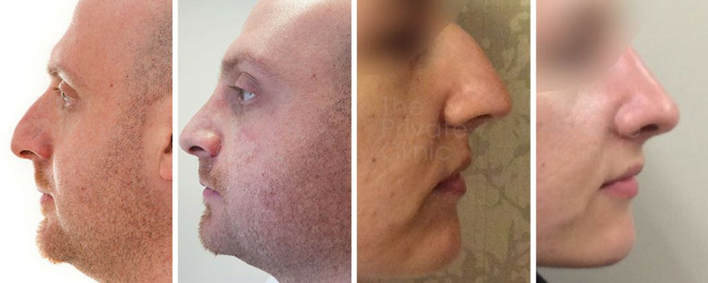 nose reshaping surgery before and after photos london