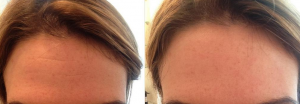 Before and after one application of notox serum.