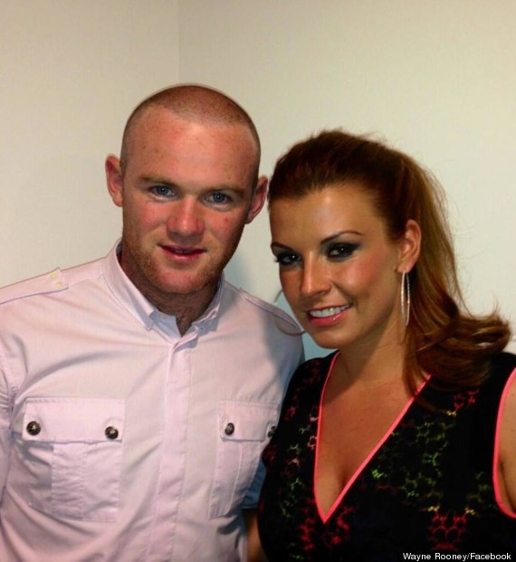 Wayne Rooney, Manchester United Footballer, Shows Off His 2nd Hair Transplant to Combat Extensive Hair Loss in 2013