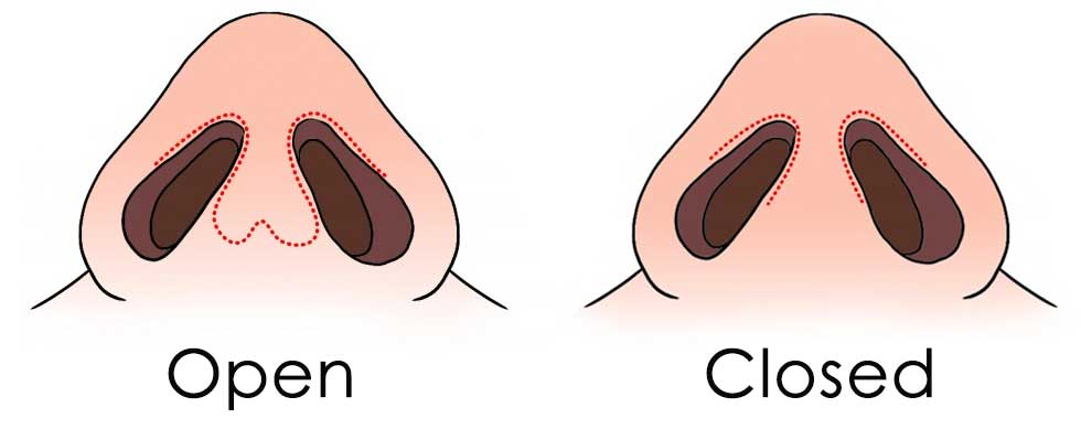 Open vs Closed Surgery Incisions
