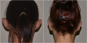 ear correction surgery before after photo
