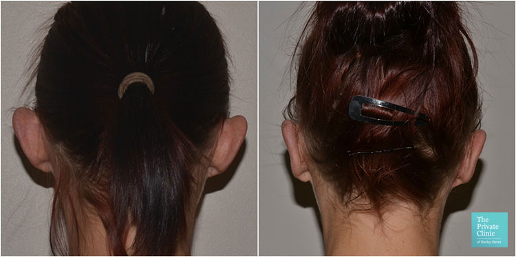 otoplasty ear correction surgery women before after results photo