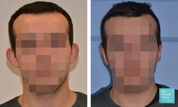 otoplasty ear correction surgery men before after photo
