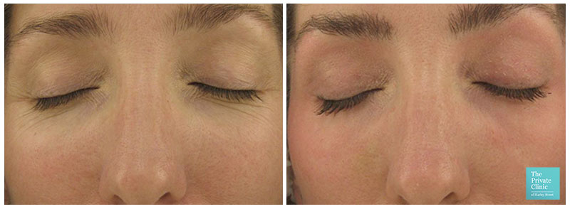 pearl fustion laser skin resurfacing for fine lines wrinkles before after photos results