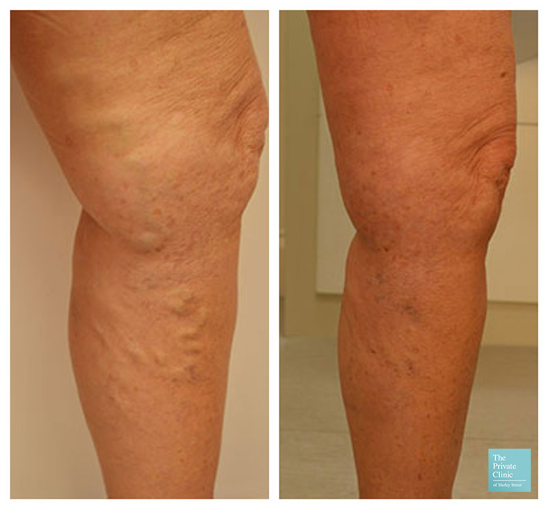 Phlebectomy large veins on legs before after photo