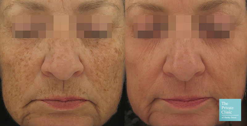pigmentation pearl laser resurfacing treatment before after