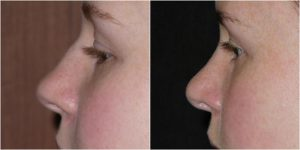 nose job rhinoplasty before after photo