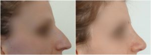 nose reshaping surgery before after photo