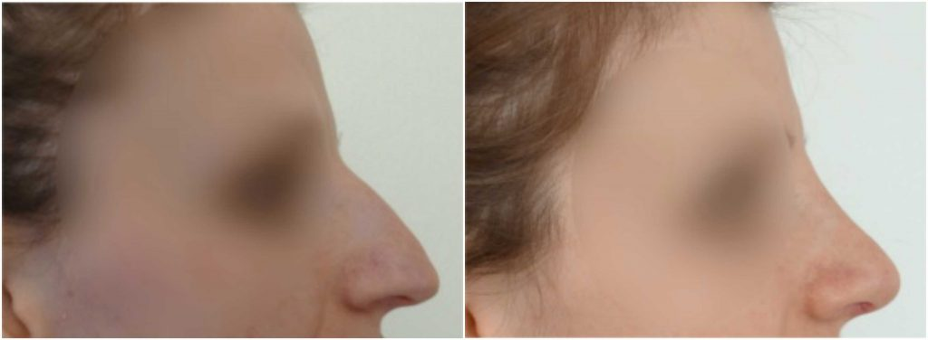 rhinoplasty-before-after-the-private-clinic-WEB