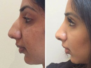 rhinoplasty before and after photo results