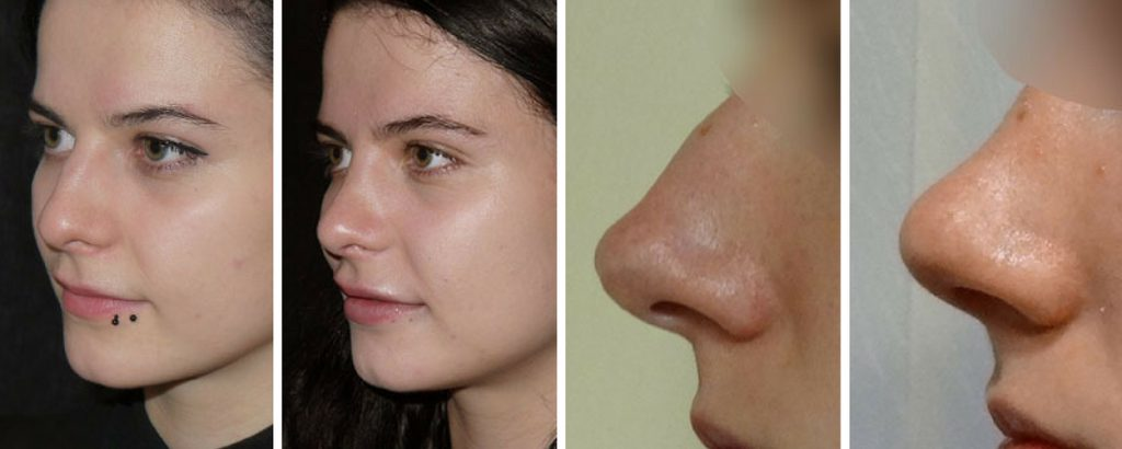 nose job surgery before and after the private clinic