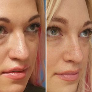 rhinoplasty surgery before after private clinic