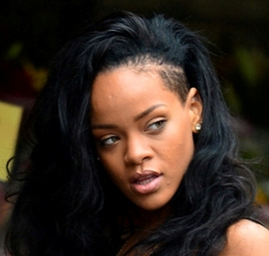 Rihanna Hair Loss Going Bald The Private Clinic