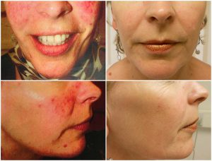 rosacea-ipl-before-after-the-private-clinic-web