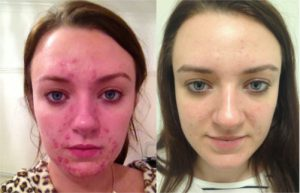 Before and after N-Lite Acne treatment at The Private Clinic
