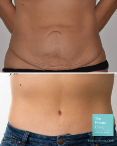 Tummy Tuck Abdominoplasty Before and After Photos UK