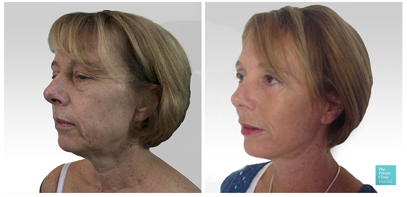 Full Facelift before and after photo