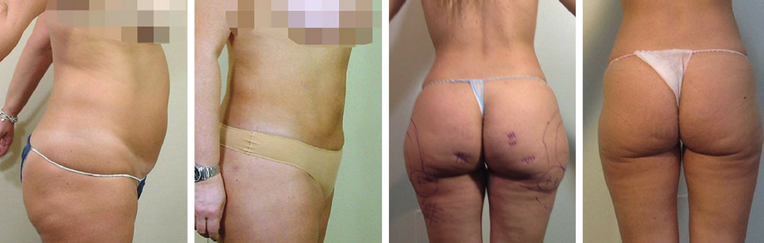 Surgical Liposuction London Before and After photos