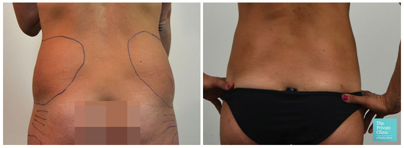 Surgical Liposuction flanks before after photo