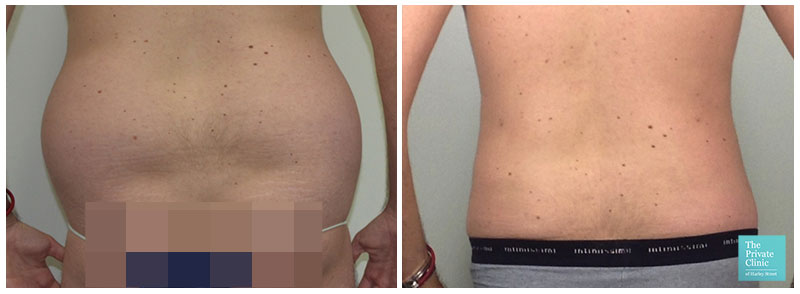 surgical liposuction love handles flanks before after photos results