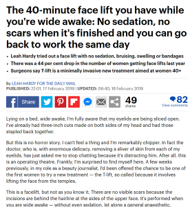 T-Lift facelift london featured in The Daily Mail