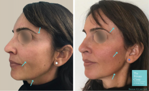 t-lift temporal facelift One Stitch Facelift london before after photos