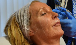 tear-trough-filler-aurora-skin-clinics-part-of-the-private-clinic-WEB