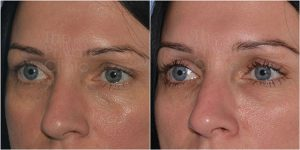 tear trough filler before after photo
