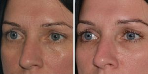 tear trough filler before and after photo