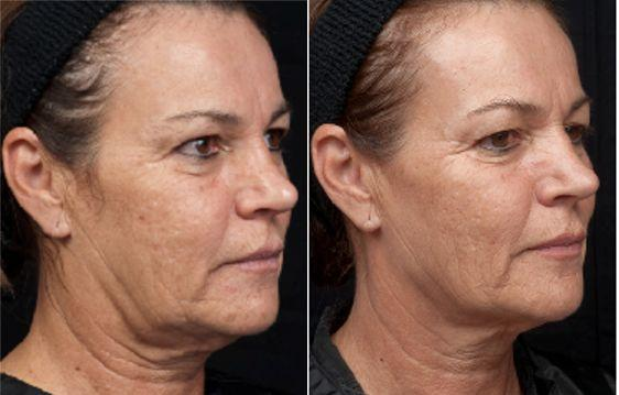 Thermage Treatment Before and After photo