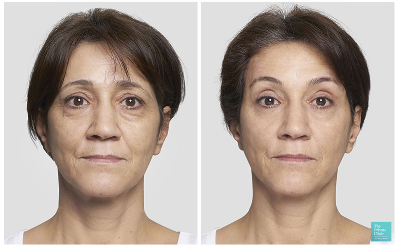 thread lift silhouette soft injectable treatment before after results