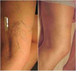 thread-veins-before-after-the-private-clinic-web