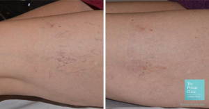 thread veins before and after photo london