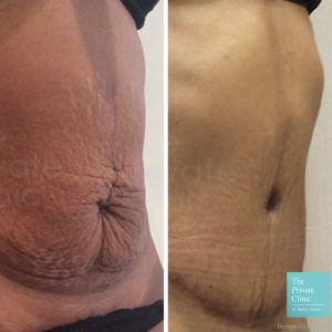 mini tummy-tuck before and after photo