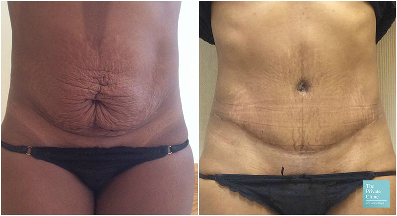 tummy tuck UK 2019 before after photos
