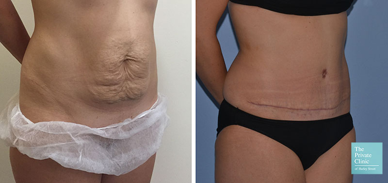 Tummy Tuck abdominoplasty for women before and after photos uk