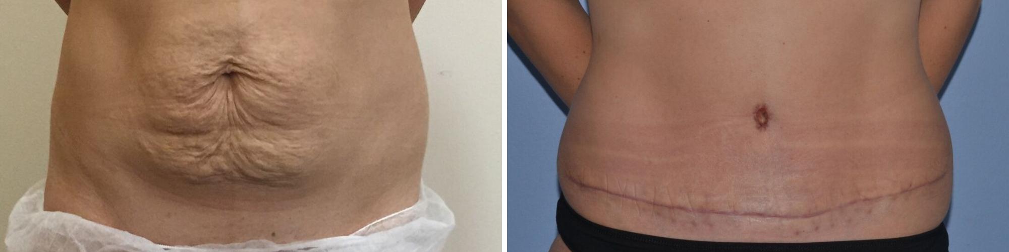 Tummy Tuck before and after UK, Mini Tummy Tuck London, Mini ...