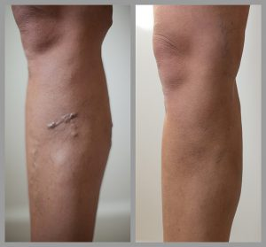 varicose vein removal surgery evla before after photos