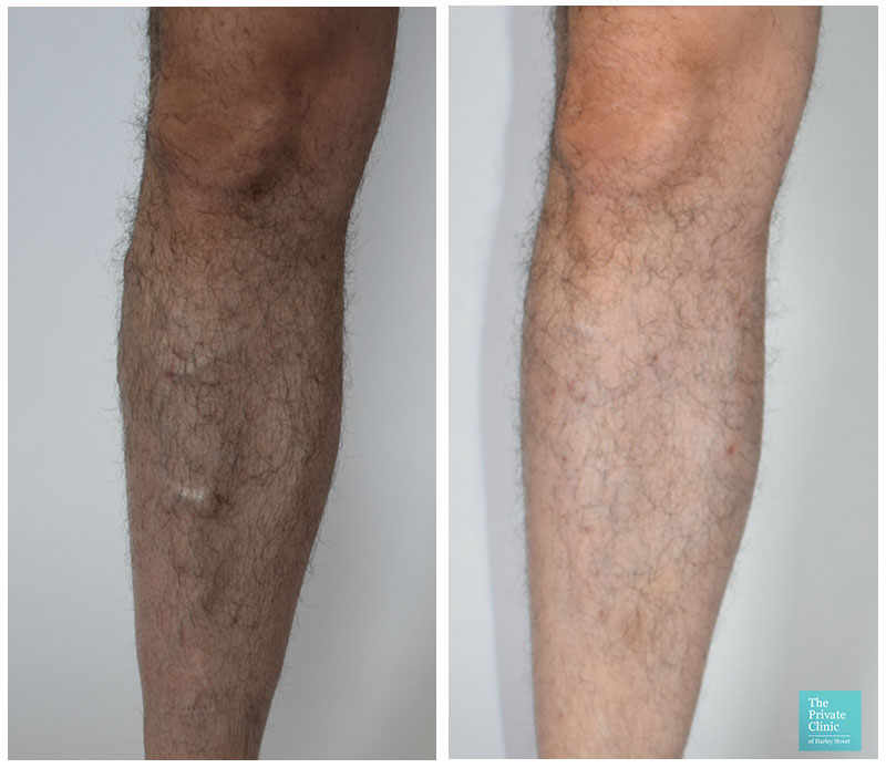 VenaSeal Varicose Vein removal surgery before and after photo