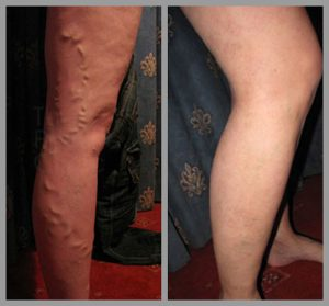 varicose vein removal surgery evla phlebectomy before after photos